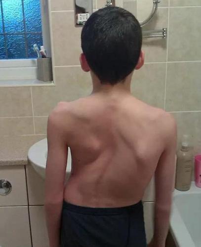 Искривление позвоночника при сколиозе грудного отдела