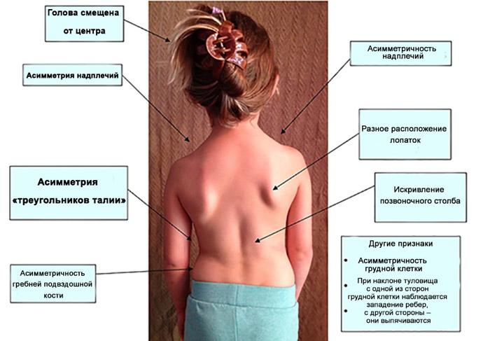 Причины и лечение сколиоза у детей skolioz_u_detej