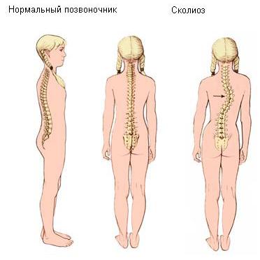 Лфк массаж физиотерапия как методы лечения