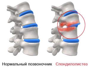 Нормальный и пораженный спондилолистезом позвоночник