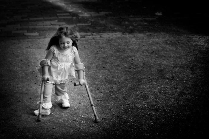 Причины и лечение спина бифида (Spina bifida) spina_bifida_invalidnost