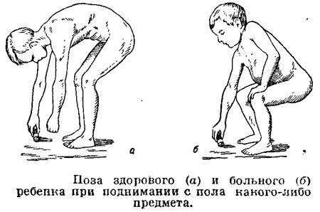 Поза больного тяжелым спондилитом ребенка