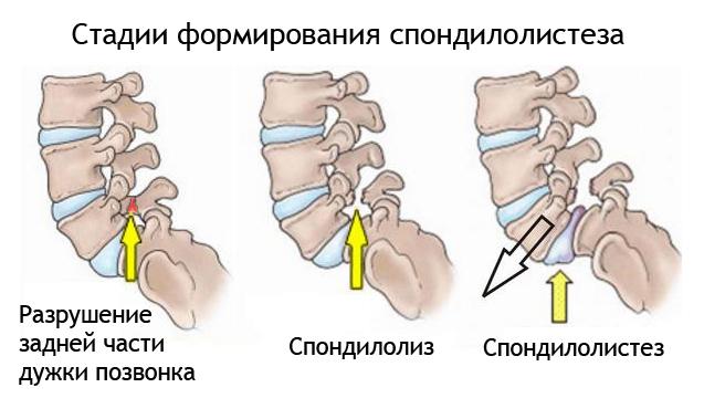 Стадии формирования спондилолиза