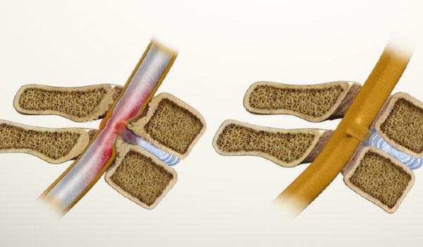 Чем опасен и как лечится стеноз позвоночного канала? stenoz-i-norma