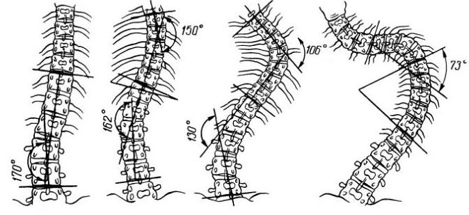 Разные формы сколиоза позвоночника