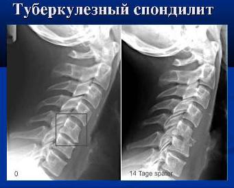 Туберкулезный спондилит на КТ