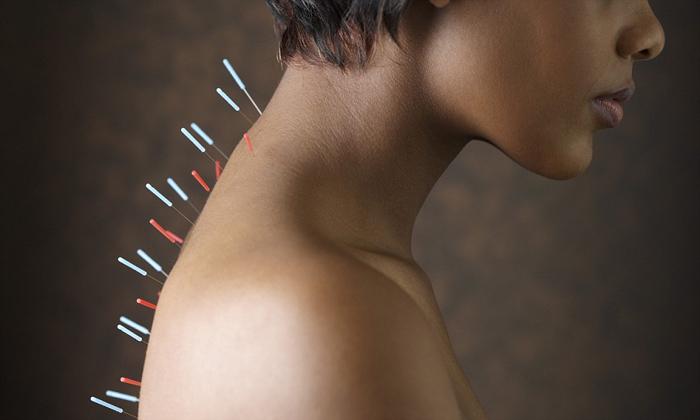 Иглоукалывание при шейном остеохондрозе