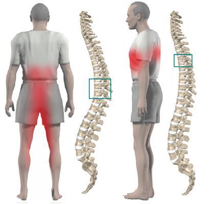 Локализация болей при дорсопатии