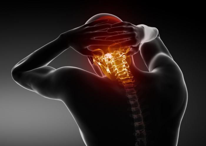 Локализация головных болей при шейном остеохондрозе