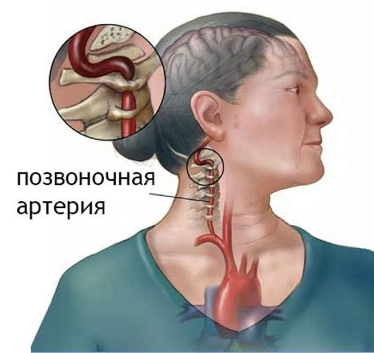 Цервикокраниалгия с поражением позвоночной артерии