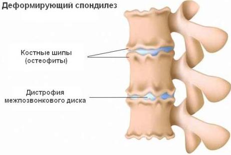 Чем опасен и как лечится спондилез позвоночника? deformiruyushiy_spondilez