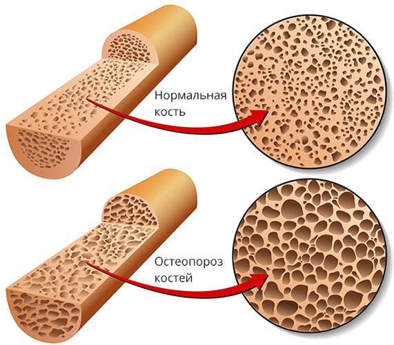 Как проводится денситометрия позвоночника? densitometriya