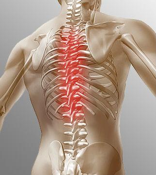 Лечение дорсопатии грудного отдела позвоночника | отзывы ...