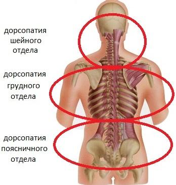 Локализация дорсопатии позвоночника