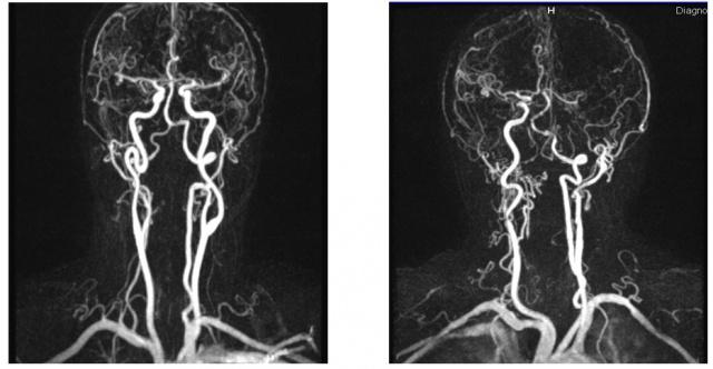Как лечится гипоплазия позвоночной артерии? gipoplaziya_pozvonochnoy_arterii_i_izvitost