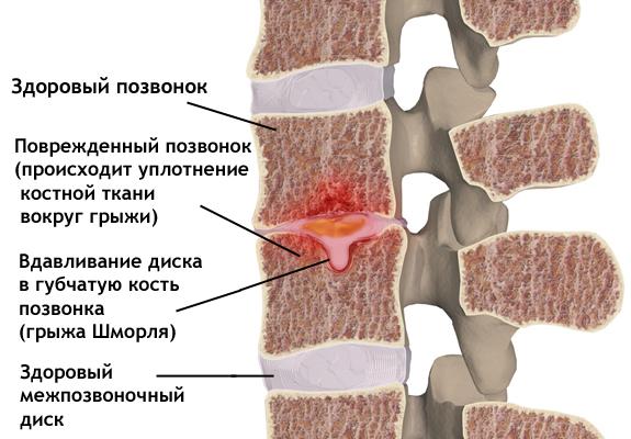 Как вылечить грыжу Шморля? grizha_shmorlya_anatomiya