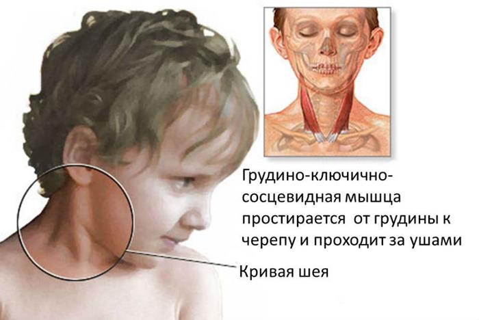 Острая кривошея у ребенка лечение