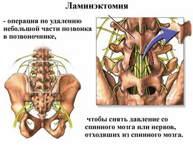 Насколько эффективна и безопасна ламинэктомия позвоночника? laminoktomiya