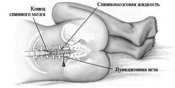 Как проводится люмбальная пункция спинного мозга? lyumbalnaya-punkciya-kak-neotemlemaya-sostavlyayushchaya-diagnostiki-meningita