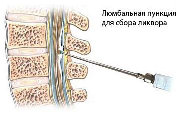 Как проводится люмбальная пункция спинного мозга? lyumbalnaya_pukciya_dlya_sbora_likvora