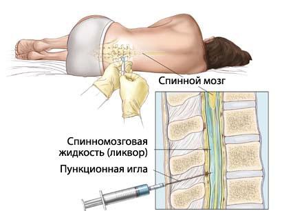 Как проводится люмбальная пункция спинного мозга? lyumbalnaya_pukciya_poza