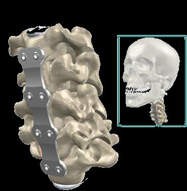 Металлические пластины для спондилодеза шейного отдела