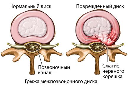 Нормальное и патологическое состояние позвоночного диска