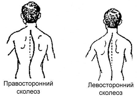 Поясничные корсеты и бандажи в москве