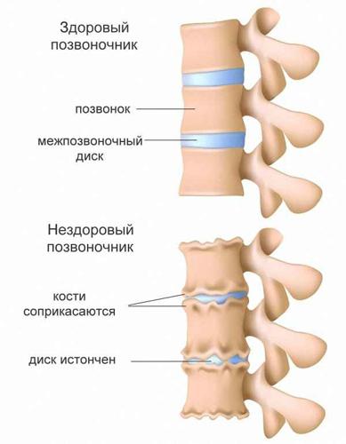 Чем опасен и как лечится спондилез позвоночника? spondilez_anatomiya