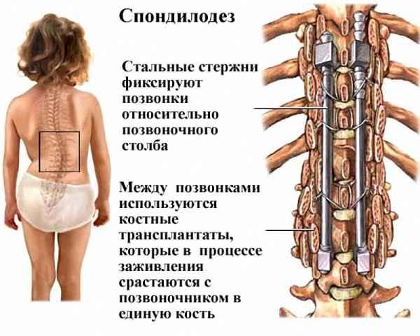 Для чего проводится спондилодез позвоночника? spondilodez-pri-skolioze