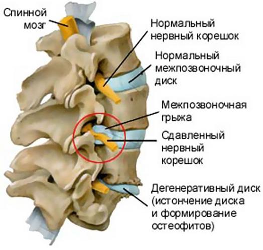 Патологическая анатомия спинного мозга и позвоночного канала