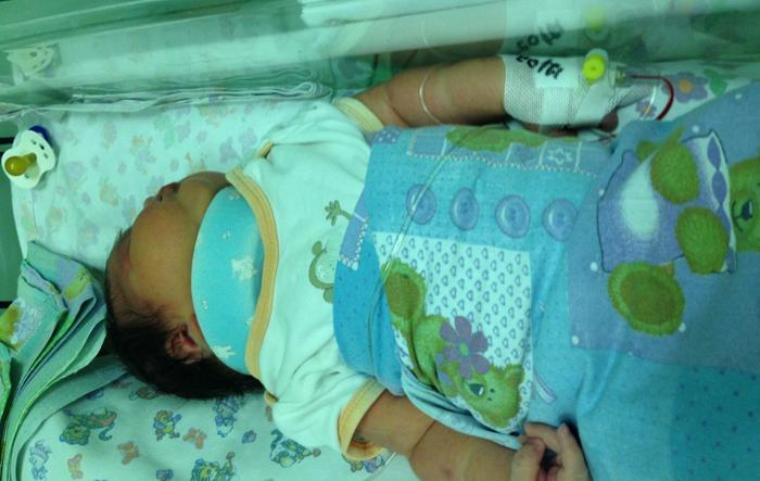 Для чего применяется воротник Шанца для новорожденных? vorotnik-shanca-dlya-novorozhdennyh-detey