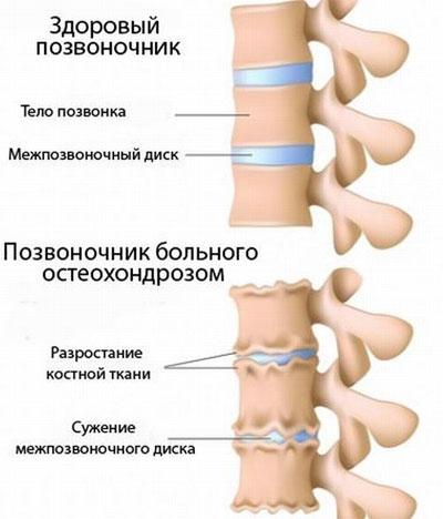 Симптомы и лечение остеохондроза 2 степени anatomiya_osteohondroza_2_stepeni