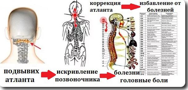 Насколько эффективна процедура атласпрофилакс? atlasprofilaks_korrektciya_pozvonka