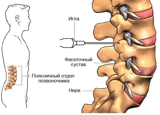 Эффективна ли блокада при остеохондрозе? blokada-pri-osteohondroze-pojasnichnogo-otdela