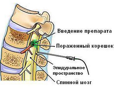 Эффективна ли блокада при остеохондрозе? blokada_osteohondroz