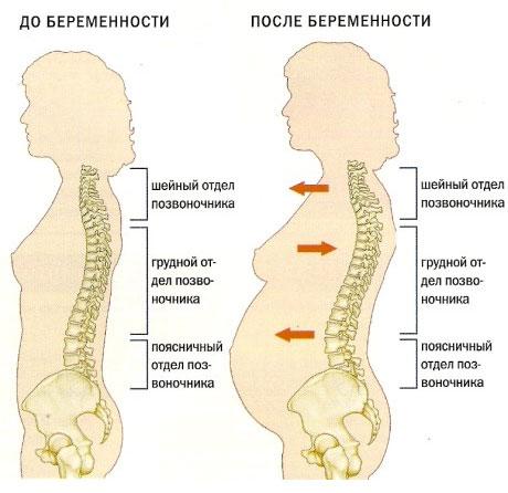 Чем опасен остеохондроз при беременности? boli-v-spine-pri-beremennosti