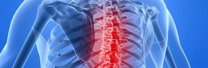 Симптомы и лечение остеохондроза 2 степени boli_pri_osteohondroze_2_stepeni