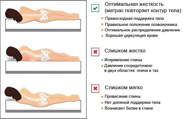 Лучшие подушки при шейном остеохондрозе kak-pravilno-spat-pri-osteohondroze