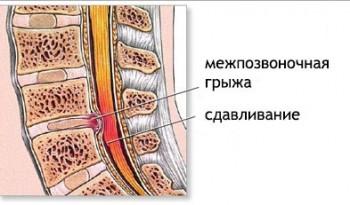 Бывает ли температура на фоне остеохондроза? oslozhneniya_osteohondroza