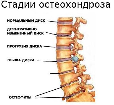 Стадии юношеского остеохондроза