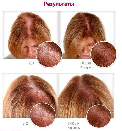 Спрей для волос Ultra Hair System 2549524470