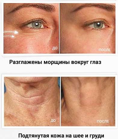 Botox Active Expert bae-prim1
