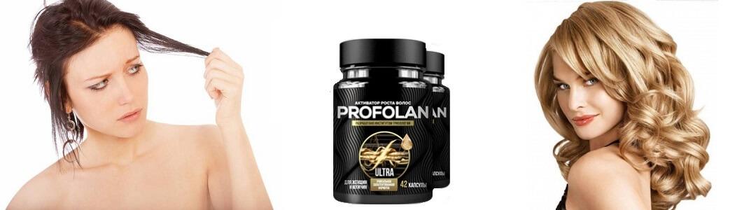 Profolan Profolan-photo3