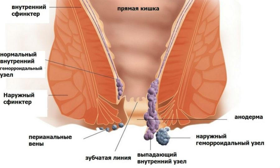 Пластырь от геморроя plastir-gemr-2