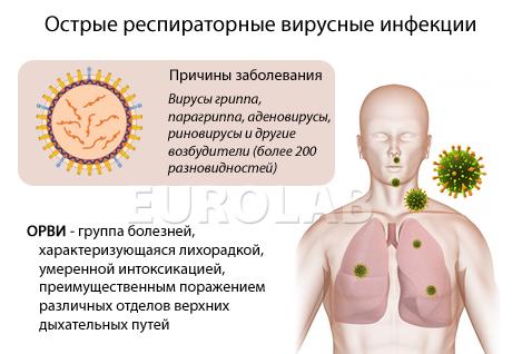 Ювенильный Артрит Олигоартикулярный Вариант
